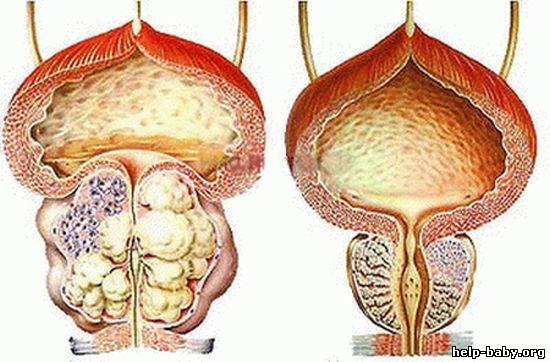 Заболевание предстательной железы т3